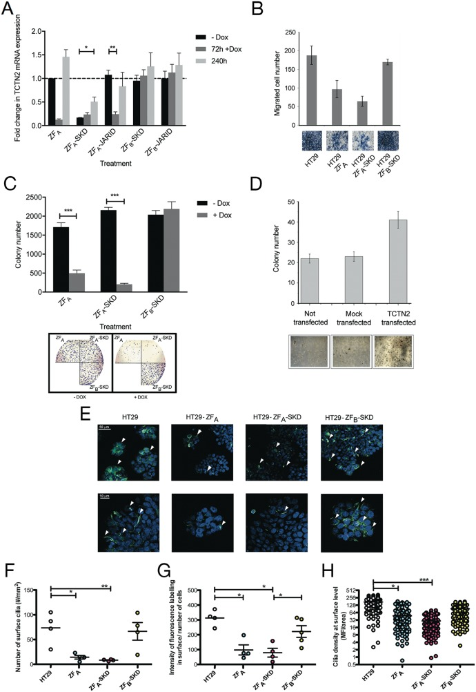 TCTN2 act as an oncogene: evidences collected by means of epigenetic editing and overexpression (A) Stable inducible HT-29 cells were generated and TCTN2 downregulation was addressed over time, after short-term induction of ZFP fusions. (B) Boyden invasiveness chamber assay in cells after TCTN2 downregulation induced by Dox addition. Cells migrated towards the lower surface of the chamber filters were fixed and counted after Diff-Quick staining. Images of the visual counting of each sample are reported below the graphs. (C) Colony forming assay in cells after TCTN2 downregulation induced by Dox. Lower panel: visual representation of the colony-forming assay from HT-29 cells without and with Dox treatment. (D) Anchorage-independent growth of HCT15 cells after transfection with a plasmid encoding full-length TCTN2. Data represent the mean value of two independent experiments, run in triplicate, and are shown as mean ± s.e.m Statistical significance was assessed by nonpaired two-tailed Student's t-test, ( * P