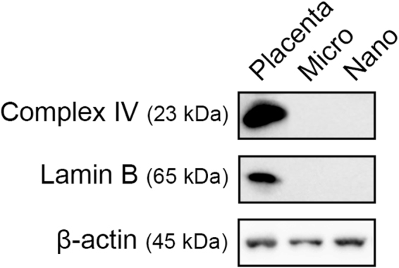 Representative western blots of mitochondrial and nuclear proteins in placental micro- and nano- vesicles. Total protein from micro- and nano- vesicles from first trimester human placentae was extracted and the presence of complex IV, <t>lamin</t> B and β-actin was interrogated by western blotting (n = 6 placentae). Placental lysates were included as a positive control.