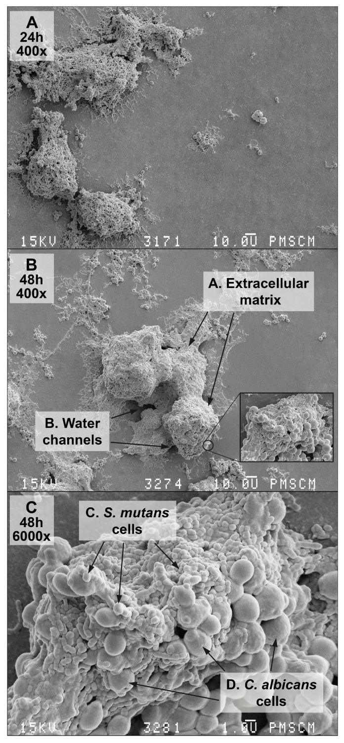 Scanning electron microscopy (SEM). ( A – C ) images of the double-species biofilm formed by C. albicans and S. mutans , after 24 ( A ) and 48 ( B , C ) h of biofilm formation. Culture was maintained at 37 °C, pH 7.0 and pCO 2 5%, in bovine serum as a medium additive promoting the growth of the culture in the presence of a sucrose substrate (5%). Original magnification: 400× and 6000×.