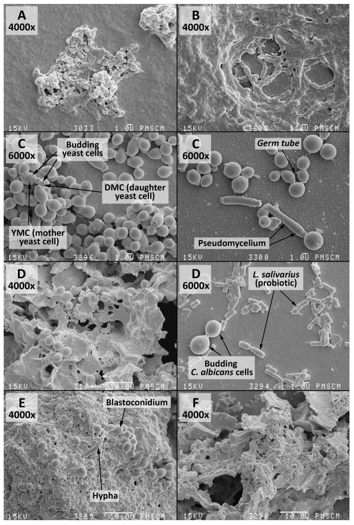 SEM images of the mono-species biofilm, generated by S. mutans , C. albicans and the double-species oral streptococci/yeasts biofilm—untreated and treated with the Lactobacillus salivarius (HM6 Paradens)—after 24 h of biofilm formation. ( A ) The 14 h S. mutans biofilm formed on a flat agar surface (Agar Scientific, Stansted, UK). S. mutans adheres to the polystyrene surface, mainly using a sucrose-dependent mechanism; ( B ) The 24 h S. mutans biofilm formed on a flat agar surface; visible polymeric Extracellular Matrix (ECM), which has an open architecture with nutrient channels, and other properties; ( C ) The 24 h C. albicans biofilm formed on a flat agar surface (Agar Scientific, Stansted, UK). C. albicans adheres to the polystyrene surface, mainly using mycelial forms, visible pseudohyphae, budding yeast, and the so-called germ tube, considered to be the key features of the pathogenicity of the fungus. The culture was maintained at 36 °C, pH 7.0 and pCO 2 5%, in bovine serum as a medium additive promoting growth of the culture in the presence of a sucrose substrate (5%); ( D ) The 24 h C. albicans biofilm formed on a flat agar surface (Agar Scientific, Stansted, UK) under the influence of Lactobacillus salivarius (HM6 Paradens). There was no clear, compact structure for the C. albicans biofilm and single loosely located budding cells. Other morphological forms of yeasts were invisible; ( E ) The 24 h double-species oral streptococci/yeasts biofilm formed on a flat agar surface (Agar Scientific, Stansted, UK). There was an apparent change in the C. albicans morphotype in the S. mutans common culture and visible pleomorphic forms were true hyphae and, blastoconidia, which in the mixed culture also produce mycelial forms, whose role is related to damage to immune cells (macrophages), leading to microorganism invasion. There was abundant extracellular matrix between cells and covering bacterial and yeast cells. Bacterial cells were visible in chains adhering to yea
