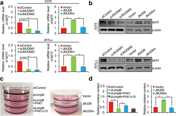JMJD6 Promotes Melanogenesis in Melanoma Cells. a A375 and 451Lu cells were transfected with control siRNA/vector, siJMJD6#1, siJMJD6#2, JMJD6, or JMJD6m. Total RNAs were extracted and analyzed for the mRNA expression of MITF by qRT-PCR. Results were presented as the mean ± SD. b A375 and 451Lu cells were transfected with control siRNA/vector, siJMJD6#1, siJMJD6#2, JMJD6, or JMJD6m. Western blotting analysis was performed with antibodies against indicated proteins. c B16F10 cells were infected with lentiviruses carrying control shRNA or Jmjd6 shRNA, and/or infected with retroviruses carrying vector or expression plasmids for PAK1, PAK1Δ15, JMJD6, or JMJD6m, and treated with α-MSH (100 nM). The culture dishes of B16F10 cells were photographed. d The B16F10 cells infected with viruses carrying indicated constructs were incubated with α-MSH (100 nM) for 24 h. Melanin content was measured at 475 nm and normalized to the protein concentration. Each bar represents the mean ± SD. Each independent experiment was performed at least three times