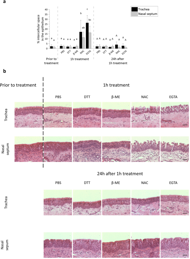Disruption of ICJ in respiratory mucosal explants. ( a ) The percentage of intercellular spaces in equine respiratory mucosal explants after 1 h treatment with PBS (control), DTT, β-mercaptoethanol, NAC or EGTA (left) and 24 h after the 1 h treatment (right). Three independent experiments were performed and data are represented as means + SD, different lower case letters indicate significant (P