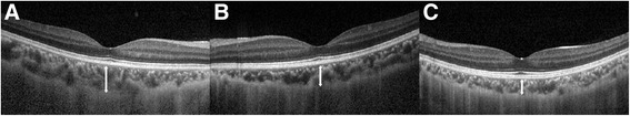 Representative photograph of subfoveal choroidal thickness measurements. Subfoveal choroidal thickness was manually measured at the foveal center using digital calipers provided by the <t>Spectralis</t> <t>OCT</t> software. Subfoveal choroidal thickness was measured by calculating the distance from a hyper-reflective line representing the outer border of the retinal pigment epithelium to the inner edge of the suprachoroidal space, which was represented by a hypo-reflective line on EDI-OCT images. ( a ) eye with acute anterior uveitis, 319 μm (group 1); ( b ) unaffected fellow eye, 258 μm (group 2); ( c ) healthy control eye matched with age, sex and refractive errors, 217 μm (group 3)