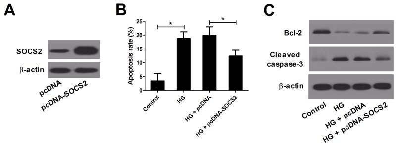 Effect of SOCS2 overexpression on apoptosis in HG-stimulated podocytes Podocytes transfected with pcDNA-SOCS2 or pcDNA were treated with HG for 24 h. (A) Western blot analysis was conducted to measure the levels of SOCS2 in podocytes after transfection for 48 h. (B) Flow cytometry was performed to assess the apoptosis of treated podocytes. (C) Western blot was carried out to evaluate the levels of Bcl-2 and Cleaved caspase-3 in treated podocytes. * P