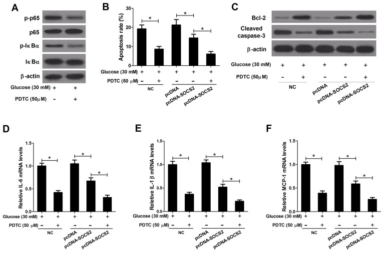 Effect of PDTC on apoptosis and inflammatory cytokines expressions in HG-stimulated podocytes transfected with pcDNA-SOCS2 Non-transfected or transfected (pcDNA or pcDNA-SOCS2) podocytes were preconditioned with or without 50 μM PDTC for 2 h, followed by exposure to 30 mM glucose for 24 h. (A) The levels of p65, p-p65, IκBα, and p-IκBα were detected by western blot analysis. (B) Apoptosis of treated podocytes was examined by flow cytometry. (C) The levels of Bcl-2 and Cleaved caspase-3 in treated podocytes were determined by western blot. The mRNA expressions of IL-6 (D) , IL-1β (E) and MCP-1 (F) in treated podocytes were determined by qRT-PCR. * P