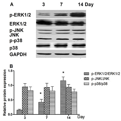 Effects of BMP-2/PELA/VEGF scaffolds on the activation of mitogen-activated protein kinase (MAPK) signaling in rats mesenchymal stem cells. A , Expression of total and phosphorylated ERK1/2, JNKs, and p38 proteins. B , Contrast gray values corresponding to phosphorylated ERK1/2, JNKs, and p38 based on western blotting analysis. Results are reported as means±SD (n=5). *P