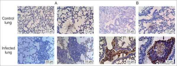 Histopathological images of lung sections at 6 h post-infection. (A) In situ presence of enolase, a control protein. (B) The presence of serine proteinase during infection in lung tissue. White arrows evidence fungal cells and black arrows evidence the labeling occurring also outside fungal cells. Scale bars are indicated. The polyclonal antibodies anti-enolase 25 at 1:150 dilution and anti-serine-proteinase 24 at 1:150 dilution, previously obtained, were used in A and B, respectively. The chromogen 3.3′ diaminobenzidine tetrahydrocloride (DAB, Dako, #K3468-1) was used, and sections were then counterstained with Mayer's hematoxylin and examined by light microscopy.