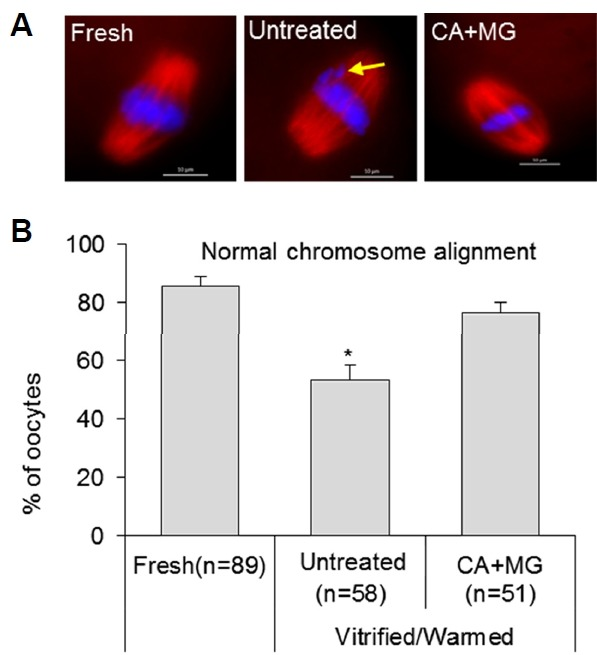 Chromosome alignment configuration in fresh oocytes and cryopreserved oocytes from untreated and 10 mM caffeine +10 μM MG132 (CA+MG) groups (A) Comparison of chromosome alignment configurations. Anti-tubulin immunostaining (red) indicates spindles and DAPI staining (blue) indicates chromosomes. Yellow arrow indicates an abnormal chromosome alignment in the untreated group. Scale bar = 10 μm. (B) Percentage of oocytes derived from vitrified/warmed oocytes (* P