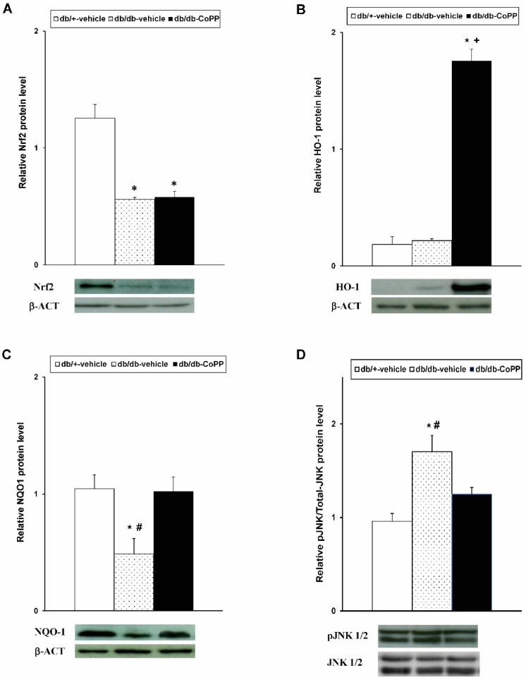Effects of CoPP treatment on the protein levels of Nrf2, HO-1, <t>NQO1</t> and <t>JNK</t> in the sciatic nerve of diabetic mice. The protein levels of Nrf2 ( A ), HO-1 ( B ), NQO1 ( C ) and JNK ( D ) in the sciatic nerve from db/db mice treated with CoPP or vehicle and in db/+ mice treated with vehicle are represented. For each protein, * indicates significant differences as compared to db/+ mice treated with vehicle and # indicates significant differences vs. db/db mice treated with CoPP ( p