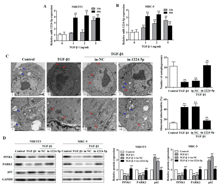 miR-1224-5p suppresses mitophagy in TGF-β1-exposed fibroblasts. ( A , B ) qRT-PCR analysis of miR-1224-5p levels in fibroblasts (NIH/3T3 and MRC-5) treated with different dose of TGF-β1 for 24 and 48 h, with ** p