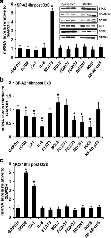 Effect of O 3 in males. a mRNA levels of GAPDH, SOD2, CAT, IL-6, STAT3, BCL2, FOXO1, FOXO3, BECN1, IKKβ, and NF-kB-p65 genes were measured in AM of male SP-A2 mice 4 h after O 3 exposure. mRNA levels were measured by qRT-PCR and normalized to GAPDH. STAT3 mRNA levels were significantly increased by 5-fold ( p