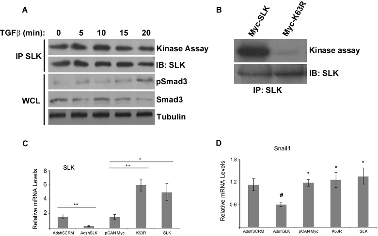 SLK regulates EMT independently of its kinase activity (A) NMuMG cells were treated with 2ng/mL of TGFβ1 for various times and SLK was immunoprecipitated and subjected to in vitro kinase assays. IP= immunoprecipitate, IB= immunoblot, WCL= whole cell lysate. (B) NMuMG cells were transfected with a wildtype or dominant negative (K63R) SLK construct and total SLK was immunoprecipitated and assayed for kinase activity. IB= immunoblot. Total RNA was also extracted from the transfected cultures following TGFβ stimulation (2ng/ml for 9 hours) and assayed for SLK (C) or Snai1 (D) expression. mRNA levels were normalized to GAPDH and directly compared to AdshSLK-infected cultures. Each experiment was run in triplicate with three biological replicates. Error bars represent the standard error. * p