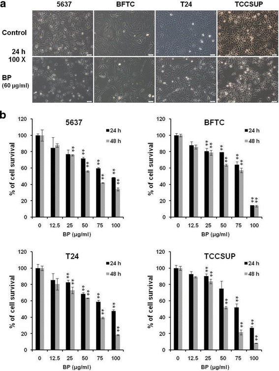 Effects of BP on the viability of human bladder cancer cells. a Human bladder cancer cells (5637, BFTC, T24 and TCCSUP) were treated with 0.2% DMSO as vehicle control or 60 μg/ml BP for 24 h, were shown; Scale bar: 50 μm. b Human bladder cancer cells were treated with various concentration of BP (12.5 to 100 μg/ml) for 24 (■) and 48 h (■), respectively, and the survival rate was evaluated with MTT assay. Data are presented as means ± S.D. obtained from three different experiments. ** p