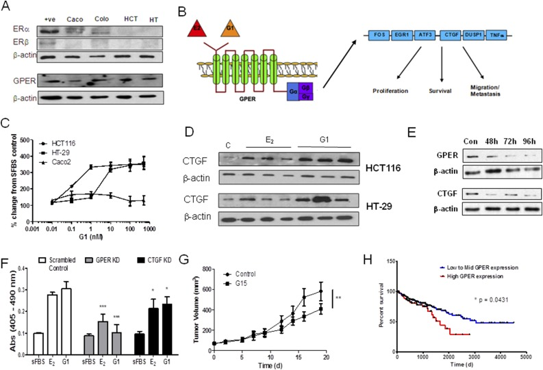 E 2 acts through GPER signaling to increase CRC proliferation. (A) ER α and ER β were not expressed in HCT116 or HT-29 but were present in Caco2 and Colo205 cells. GPER was expressed in all cell lines tested. β -Actin was used as a loading control. One representative blot from three independent experiments. (B) Schematic of the downstream molecular signaling factors stimulated by GPER action as defined in breast cancer. (C) The GPER agonist G1 increased the proliferation rates in a dose-dependent manner compared with cells grown only in media with sFBS (two-tailed Student t test used; n = 4 independent experiments). (C) The GPER antagonist G15 (1 mM) inhibits the increased proliferation induced by E 2 (100 nM for 72 hours) and G1 (100 nM for 72 hours) in HCT116 and HT-29 cells. ** P
