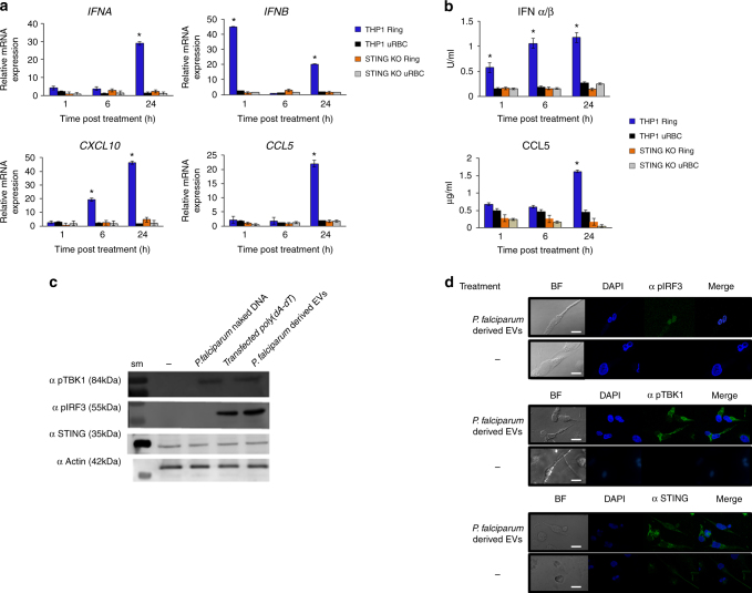 P. falciparum EV-DNA activates STING-dependent signaling in monocytes. a . THP-1 or STING KO THP-1 cells were incubated with P. falciparum ring-stage-derived or uRBC-derived vesicles for 1, 6 and 24 h. RT–PCR was performed for IFNA , IFNB , CXCL10 , IFIT1 and CCL5 . SD and T -test analysis * p ≤ 0.05. b . THP-1 or STING KO THP-1 cells were incubated with P. falciparum ring-stage or uRBC-derived vesicles for 1, 6 and 24 h. An ELISA assay was performed for CCL5 and CXCL10. HEK blue IFNα/β was performed. SD and T -test analysis * p ≤ 0.05. c . THP-1 cells were incubated with P. falciparum ring-stage-derived vesicles, P. falciparum gDNA or transfected with poly(dA:dT) for 24 h. WB analysis was performed for STING, pIRF3, pTBK1 and α actin, sm-size marker. d . THP-1 cells were incubated with P. falciparum ring stage-derived vesicles for 24 h. Confocal microscopy images were taken for STING, pIRF3, pTBK1 (FITC), and DAPI. Scale bar 10 μm
