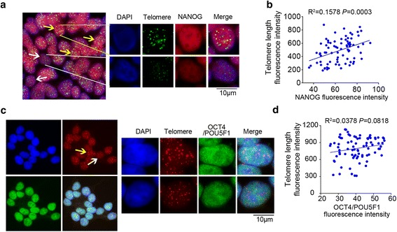 NANOG and OCT4/POU5F1 expression levels in association with telomere length and pluripotency of human embryonic stem cell (hESCs). a Telomere fluorescence signal (green, TelC-FITC, F1009, Panagene) and NANOG expression (red) in hESCs revealed by IF-FISH. DAPI-stained nuclei. b Linear regression analysis of telomere length and NANOG protein expression at single cell level. c Telomere fluorescence signal (red, TelC-Cy3, F1002, Panagene) and OCT4/POU5F1 expression (green) in hESCs revealed by IF-FISH. DAPI-stained nuclei. d Linear regression analysis of telomere length and OCT4/POU5F1 protein expression at single cell level