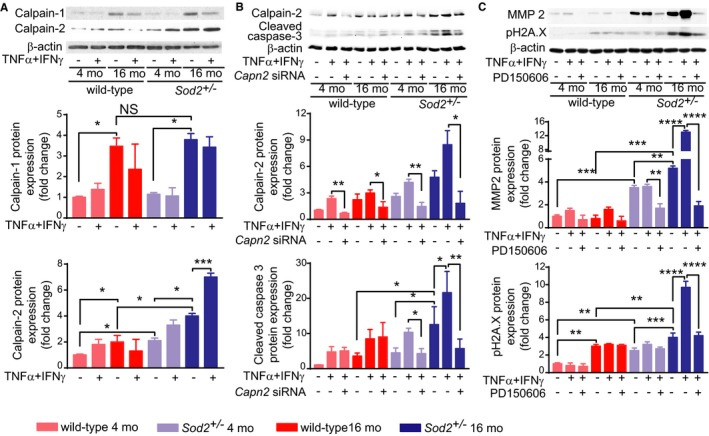 Increased mt ROS and impaired mitochondrial function result in increased calpain‐2, cleaved caspase‐3, and MMP 2 levels in VSMC from middle‐aged Sod2 +/− mice. A, Western blot analysis and densitometric quantification of <t>calpain‐1</t> and calpain‐2 expression in VSMC treated with 100 ng/mL TNF α and 200 ng/mL IFN γ (mean± SEM , n=4). B, Western blot analysis and densitometric quantification of calpain‐2 and cleaved caspase‐3 levels in VSMC treated with TNF α+ IFN γ and nontargeting control or Capn2 si RNA (mean± SEM , n=4). C, Western blot analysis and densitometric quantification of MMP 2 and phospho‐H2 AX levels in VSMC treated with TNF α+ IFN γ and 100 μmol/L PD 150606 (mean± SEM , n=4). N represents a number of independent experiments. * P