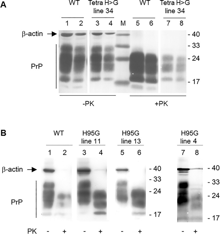 Western blot analysis of brain lysates from RML-infected wt and transgenic mice for total PrP C and PrP Sc using monoclonal antibody 4H11. ( A ) Brain homogenates from terminally ill wt and PrP(TetraH > G) line 34 mice were either left untreated (- PK) or subjected to digestion with proteinase K (+ PK). Blots were reprobed for β-actin to control for equal loading. Bands corresponding to total PrP are marked on the left. Irrelevant lanes have been excised at two positions. Molecular weight standards are given on the right (in kDa). ( B ) Corresponding immunoblot analysis of brain homogenates extracted from RML-infected PrP(H95G) mice from the three different lines 11, 13, and 4, respectively, and corresponding wt control (lanes 1 and 2) before (-) and after (+) treatment with PK. Molecular weight standards are given on the right (in kDa).