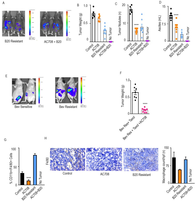 AC708 reduces tumor burden in setting of adaptive resistance to anti-VEGF therapy Bioluminescent signal differences between B20 resistant mice with and without the addition of AC708 are shown. Automatic exposure time was used A. . Tumor weight, tumor nodules, and volume of ascites B. - D. are shown in IG10 murine ovarian cancer model of adaptive resistance treated with AC708, B20, or the combination, after resistance was determined by bioluminescent imaging. E. demonstrates bioluminescence imaging differences in those mice sensitive versus resistant to treatment with bevacizumab and paclitaxel in OVCAR432 HGSC model. Automatic exposure was time was used. Tumor weight of the OVCAR432 model shown in groups resistant to bevacizumab, plus paclitaxel, with and without AC708 F. . G. Quantification of macrophages from IG10 model treated with AC708, B20, or the combination in the setting of adaptive resistance. Macrophage content was determined by the percentage of CD11b + /F4/80 + cells out of CD45 + cells, using flow cytometry. The same groups were also stained for F4/80 via immunohistochemistry to quantify macrophages H. . **** denotes p≤0.0001.