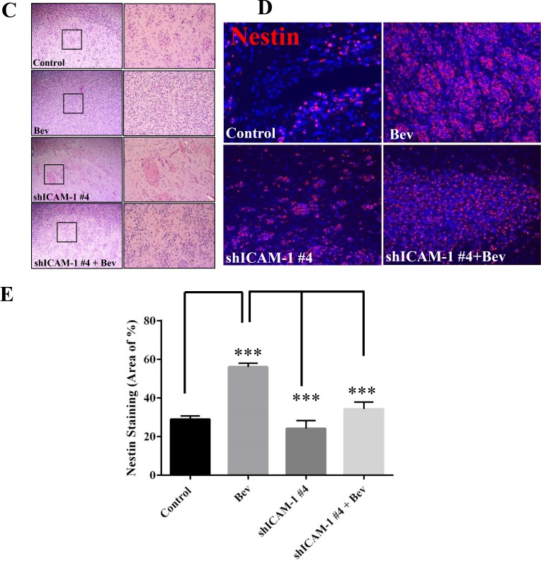 ICAM-1 knockdown suppresses cell invasion in vitro and in vivo ( A ) and ( B ) GSC11GFP control and shRNA ICAM-1#4 cells treated with or without bevacizumab were subjected to a transwell migration assay. Photomicrographs of representative samples from the assay (A) and the bar graph of quantitative absorbance (590 nm) (B) revealed that shRNA ICAM-1#2 and shRNA ICAM-1 #4 cells significantly were less invaded compared with GSC GFP after cells treated with or without bevacizumab. Representative photomicrographs from three independent experiments are shown (magnification ×200) ( * P