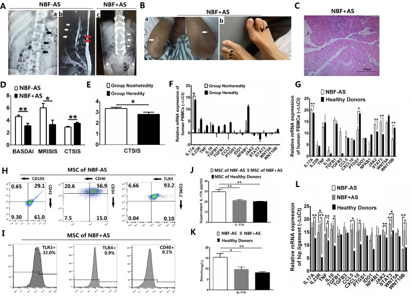 IL-17A-promoted MSC2 polarization related with new bone formation of AS patients Values are the mean ± SEM. * P