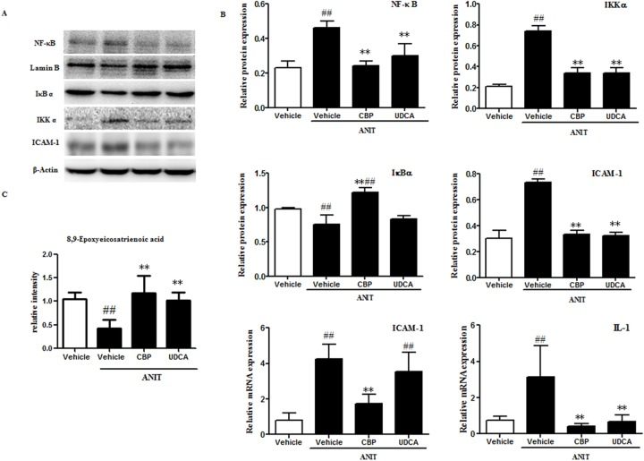 CBP inhibits liver inflammation in mice with intrahepatic cholestasis (A) The effects of CBP on protein levels of NF-κB, IκBα, IKKα, and ICAM-1, detected by western blot. (B) Quantitative analysis of the effects of CBP on NF-κB, IκBα, IKKα, and ICAM-1 proteins, and IL-1 and ICAM-1 mRNA expression. (C) Quantitative analysis of 8, 9-epoxyeicosatrienoic acid by <t>UPLC-LTQ-orbitrap.</t> Data are expressed as the mean ± SD, * p