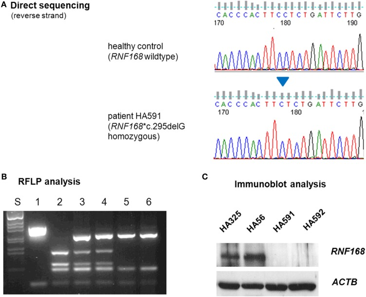 Assessment of RNF168 mutation (A) and RNF168 protein level (B) . (A) Direct sequencing of RNF168 exon 12 reveals homozygosity for the novel frameshift mutation c.295delG in genomic DNA from either of both patients (HA591, HA592). (B) RFLP analysis of PCR products on 2% agarose gel electrophoresis. S, size marker; 1, undigested PCR product; 2–6, PCR products cleaved with Mnl I: 2, wild-type control, 3, paternal sample, 4. maternal sample, 5, patient HA591, 6, patient HA592. (C) Western blot analysis reveals strongly reduced immunoreactivity for RNF168 protein in lymphoblastoid cells from either of both patients (HA591, HA592). Lymphoblastoid cell lines (LCLs) from a healthy individual were used as an RNF168-proficient control (HA325), and LCLs from a patient with classical ataxia–telangiectasia were used for comparison (HA56). β-actin served as the loading control (ACTB).