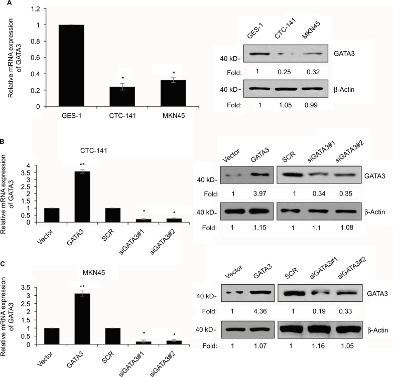 GATA3 is downregulated in GC cells. Notes: ( A ) Expression of GATA3 in GC cell lines, CTC-141 and MKN45, and human normal gastric mucosal cell line GES-1 was detected by qRT-PCR and Western blotting, respectively. * P