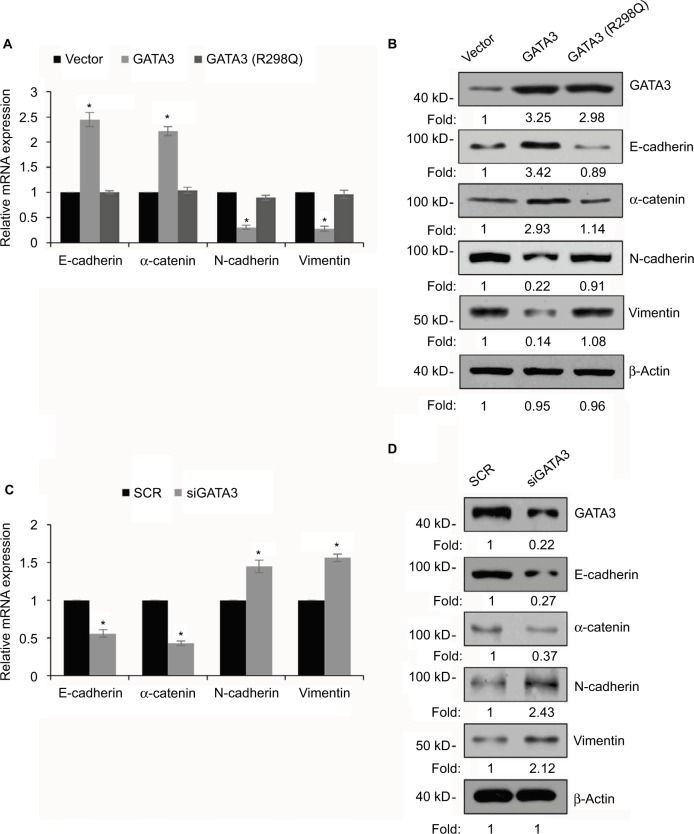 GATA3 inhibits epithelial–mesenchymal transition (EMT) in gastric cancer cells. Notes: ( A ) CTC-141 cells were transfected with vector, GATA3 and GATA3 (R298Q), and the relative expressions of EMT-associated genes were detected by <t>qRT-PCR.</t> * P
