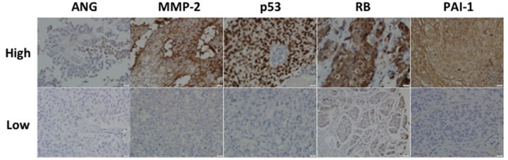 Representative expression status for ANG, MMP-2, p53, RB and PAI-1 in a high-grade non-muscle invasive bladder cancer Upper row represents high intensity while lower row represents low intensity associated with each target. All images were captured at 400× magnification.