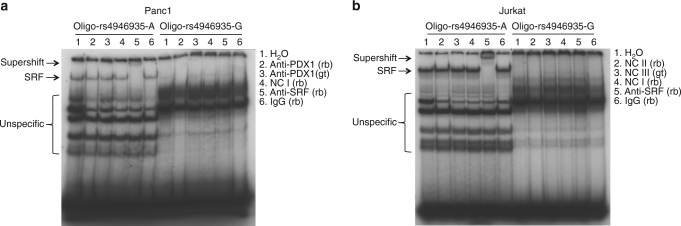 SRF binds to the longevity allele A but not to the major allele G of rs4946935. Nuclear extracts from Panc1 a and Jurkat b cells were submitted to EMSA with the indicated oligonucleotides. Supershift experiments were performed with antibodies as listed. The position of the supershifted complex is indicated by an arrow. One biological replicate of four is shown. Gt goat, <t>IgG</t> immunoglobulin G, NC nonspecific control (NC I: <t>anti-STAT5A,</t> rabbit; NC II: anti-PDX1, rabbit; NC III, anti-PDX1, goat); PDX1 pancreatic and duodenal homeobox 1, rb rabbit, SRF serum response factor