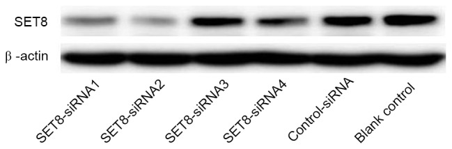 Selection of SET8 -siRNA renal carcinoma 786-O cells by western blotting. siRNA, small interfering RNA; SET8 , SET domain containing (lysine methyltransferase) 8.