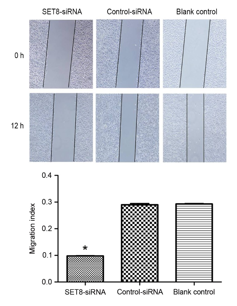 SET8 -knockdown suppresses renal carcinoma 786-O cell migration by wound healing assay. *P