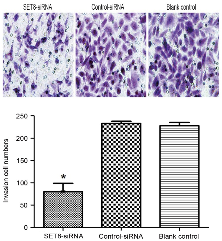 SET8 -knockdown suppresses renal carcinoma 786-O cell invasion by Transwell assay. *P