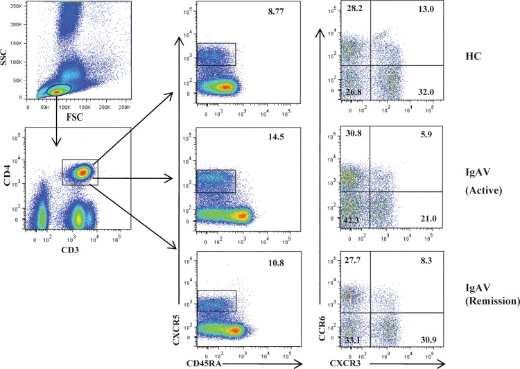 Detection of circulating Tfh cell subsets by flow cytometry. Peripheral blood mononuclear cells (PBMCs) were isolated from patients with immunoglobulin A vasculitis (IgAV) (n = 30) and age and gender-matched healthy controls (HCs; n = 15), labeled with fluorophore-conjugated antibodies, and analyzed by flow cytometry. A gating strategy was used to identify CD3 + CD4 + T helper (Th) and CD4 + CXCR5 + CD45RA − , CD45RA − CXCR3 + CCR6 − , CD45RA − CXCR3 − CCR6 − , CD45RA − CXCR3 − CCR6 + , and CD45RA − CXCR3 + CCR6 + follicular helper T (Tfh) cell subsets.