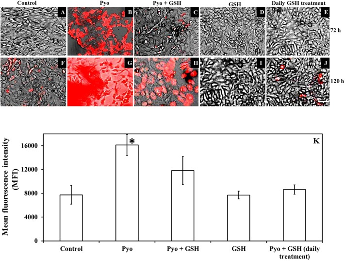 Effect of pyocyanin and GSH on a marker of oxidative stress within A549 cells. The degree of oxidative stress in 72 h old pre-established A549 cells subjected to pyocyanin, pyocyanin + GSH or GSH over 3 and 5 days was examined using the CellROX oxidative stress assay. Extent of red color indicates level of oxidative stress. (B,G) : 72 h pre-established A549 were considerably stressed when incubated with pyocyanin for 3 and 5 days in comparison to control/untreated A549 cells (A,F) . (C,H) : Pyocyanin + GSH resulted in a considerable reduction in oxidative stress. (D,I) : GSH did not result in oxidative stress even after 5 days. (E,J) : When A549 cells were treated with pyocyanin + GSH followed by treatment with GSH every 24 h for 3 (72 h) and 5 days (120 h), a dramatic reduction in oxidative stress was noted compared to a single treatment with pyocyanin + GSH. Bar = 50 μm. Images shown are representative of results taken from n = 3 independent experiments. (K) Shows mean fluorescence intensity (MFI) of A549 cells after they were subjected to different treatment regimens. Pyocyanin-alone treated cells exhibited significantly higher (MFI = 16115) relative to control (MFI = 7732) and pyocyanin + single-GSH treatment (MFI = 11833) and GSH alone treatment (MFI = 7700). Whereas, pyocyanin treated A549 cells subjected to daily GSH treatment showed MFI = 8619 slightly higher (insignificant) than control (K) . ∗ P