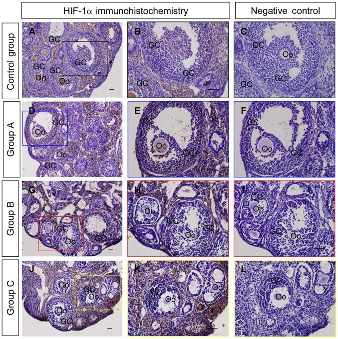 Immunohistochemical examination of HIF-1α in the ovaries from each group. HIF-1α immunohistochemical signals are brown and the hematoxylin counterstaining background are blue. Negative controls remained unstained as they lacked primary antibody. (A and B) HIF-1α immunohistochemical staining of ovaries from the control group. (C) Negative control of the control group. (D and E) HIF-1α immunohistochemical staining in ovaries from group A. (F) Negative control of group A. (G and H) HIF-1α immunohistochemistry in ovaries from group B. (I) Negative control of group B. (J and K) HIF-1α immunohistochemical staining in ovaries from group C. (L) Negative control of group C. Scale bar=100 µm. Coloured boxes on the left side panels indicate the area exhibited on the middle and right side panels. GC, granulosa cell, Oo; oocyte; control group, mice treated with corn oil; group A, mice treated with a low dose of DMC; group B, mice treated with a medium dose of DMC; group C, mice treated with a high dose of DMC; DMC, dimethyl carbonate.
