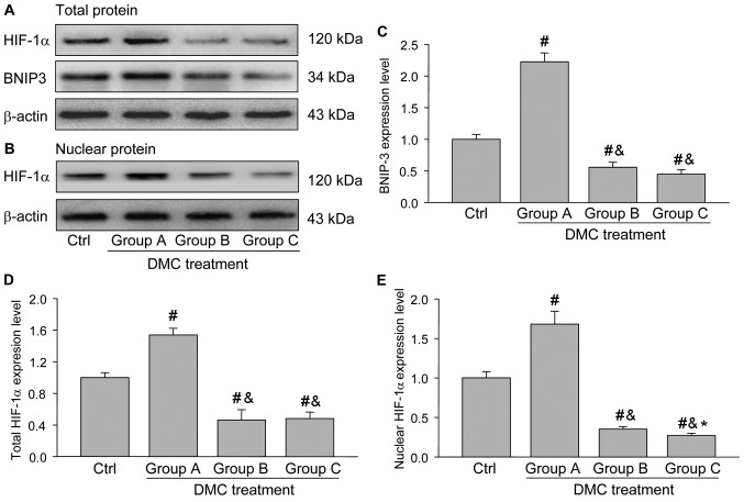 Western blotting analysis of HIF-1α and BNIP3 expression in the ovaries from each group. (A) Western blotting indicating the expression of HIF-1α and BNIP3 in the different groups. (B) Western blotting indicating the expression of HIF-1α nuclear protein in the different groups. (C) Quantification of BNIP3 expression normalized to β-actin. (D) Quantification of total HIF-1α expression normalized to β-actin. (E) Quantification of HIF-1α nuclear expression normalized to β-actin. Data are expressed as the mean ± standard error of the mean. One-way analysis of variance was used to analyze the data. # P