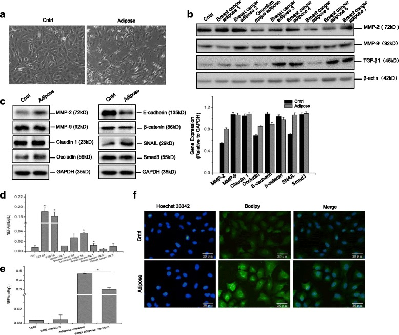 Adipose tissue extracts enable the EMT of CCA cells. Human cholangiocarcinoma (CCA) cell line RBE was incubated with complete growth medium or medium containing human adipose tissue extracts for 24 h. The cell morphology was observed under the invert microscopy (40×) ( a ). Protein expression of MMP2, MMP9, TGF-β1, claudin 1, <t>occludin,</t> E-cadherin, β-catenin, SNAIL, and Smad3 were analyzed by immunoblot analysis in response to adipose extracts incubation, and the band densitometry analysis was carried out relative to the loading control β-actin or GAPDH ( b , c ). To determine fatty acid metabolism, the culture medium with different adipose components prior to or after incubation with RBE cells for 24 h were collected for extracellular glycerol and nonestesterified fatty acid (NEFA) detection using colorimetric assays, with the data presented as the absorbance at 490 nm( d , e ). The intracellular lipids in adipose cultured RBE cells were visualized by the fluorescence dye Bodipy (20 μg/mL) using confocal microscopy analysis, using Hochest33342 (0.5 μg/mL) for nuclear staining ( f ). All the samples were prepared in triplicate, and all experiments were repeated at least three times. * P