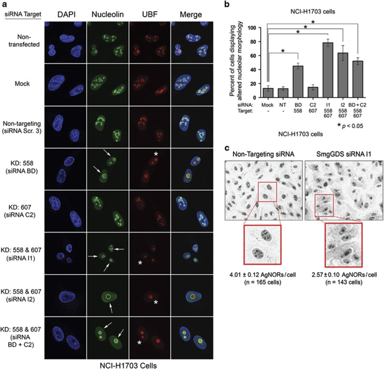 The RNAi-mediated depletion of SmgGDS-558 disrupts nucleolar morphology. ( a ) NCI-H1703 cells were transfected with the indicated siRNAs to deplete SmgGDS isoforms, and 72 h later the cells were immunofluorescently stained with nucleolin antibody, UBF antibody and 4,6-diamidino-2-phenylindole (DAPI), and examined by confocal fluorescence microscopy. Arrows indicate circular redistribution of nucleolin, and asterisks indicate UBF cap formation ( n =3). ( b ) NCI-H1703 cells treated the same as in a were scored for disruption of nucleolar morphology according to the key described in Supplementary Figure S3 . Scoring was conducted without knowledge of the siRNAs used to treat the cells, and values represent the mean±s.e.m. from 100 cells scored in three independent experiments. Statistical significance was determined by one-way repeated measures analysis of variance and Dunnett's multiple comparison test (* P