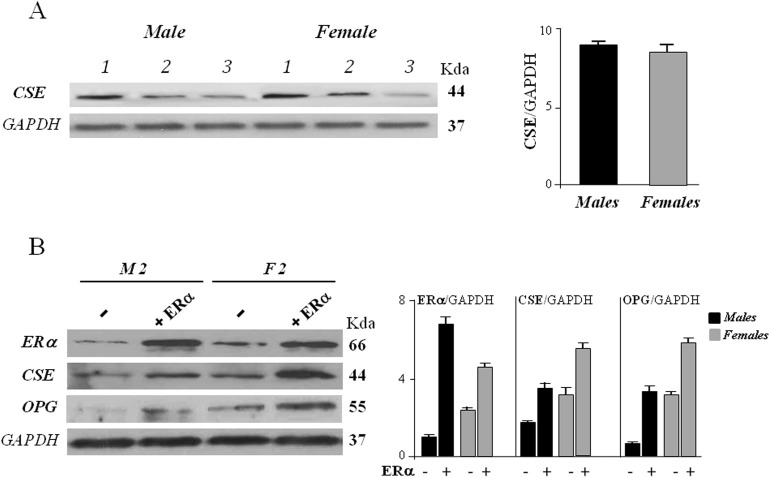 CSE protein expression in hOBs from male (M) and female (F) donors (A) The cells were harvested after 72 hours of culture and subjected to Western blot analysis for CSE expression. Bar graphs show the densitometric analysis of all samples analyzed. GAPDH expression was used as the internal control to evaluate total protein of samples loaded, data were expressed as ratio of CSE in respect to GAPDH and presented as mean + standard deviation, SD (n=3 for male group, n=3 for female group). (B) The cells were exposed to ERα overexpression together 10 nM 17β-estradiol for 48 hours (+ ERα) or remained untreated (-) and subjected to Western blot analysis for ERα, CSE and OPG expression. Representative Western blot is reported (sample 2, M2, for male group, and sample 2, F2, for female group). Bar graphs show the densitometric analysis of all samples analyzed. GAPDH expression was used as the internal control to evaluate total protein of samples loaded, data were expressed as ratio of ERα, CSE and OPG in respect to GAPDH and presented as mean + standard deviation, SD (n=3 for male group, n=3 for female group).