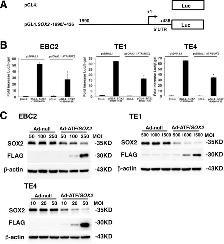 Repression of SOX2 transcriptional activity and protein expression by ATF/ SOX2 in lung and esophageal SCC cells ( A ) Schematic representation of SOX2 distal and proximal promoter reporter constructs. TSS; transcription start site. Luc; Luciferase. ( B ) Transient transfection reporter assays in lung SCC cells and esophageal squamous carcinoma cells with the indicated luciferase reporter constructs (2 μg, pGL4), effector constructs (2 μg, pcDNA3.1) and pCMV. β-gal (1 μg). Results are presented as fold induction of relative light units normalized to β-galactosidase activity relative to that observed for control constructs. Statistical analysis was performed using Student's t test (two-tailed, unpaired). Statistical significance was defined as * p