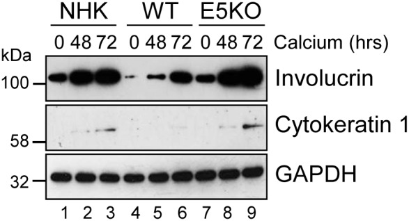 HPV18 E5 impairs keratinocyte differentiation Lysates of NHK, WT and E5KO keratinocytes subjected to high calcium differentiation were analysed for involucrin and cytokeratin 1 (K1) expression. GAPDH served as a loading control. Western blots are representative of three independent experiments in two donor lines.
