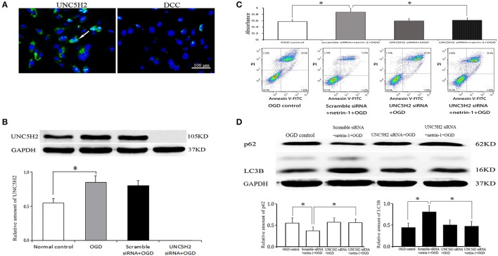 Netrin-1 receptors on RBMVECs and their function. (A) <t>UNC5H2</t> receptor, not DCC receptor, was expressed on RBMVECs. Arrows indicates positive green signal by immunofluorescence. (B) Western blot analysis of UNC5H2 receptor. OGD-induced UNC5H2 was efficiently knocked down by UNC5H2 <t>siRNA</t> transfection. (C) Cell viability shown by CCK-8 and Annexin V-FITC kit. (D) Western blot analysis of autophagy-related protein p62 and LC3. UNC5H2 siRNA transfection did not change cell viability or autophagy activity after OGD, but suppressed the strengthened effects of netrin-1 (50 ng/mL) on cell viability and autophagy activity. * P