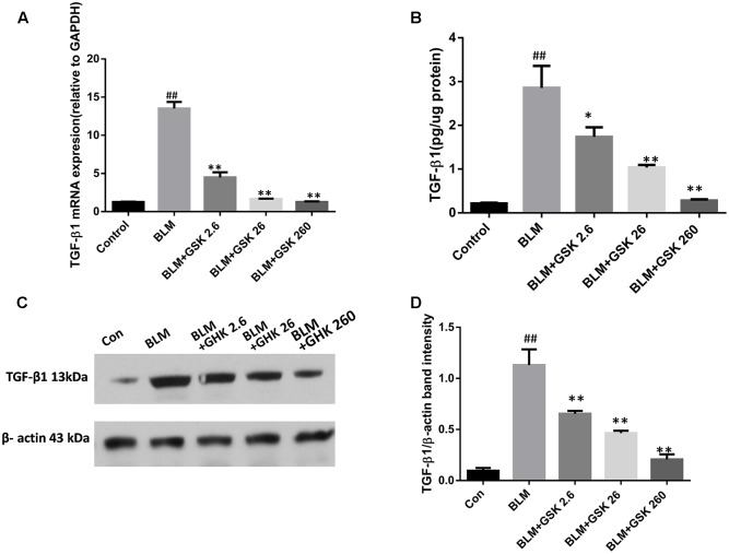 Effects of GHK on TGF-β1 mRNA and protein expression in mice with BLM-induced fibrosis. (A) TGF-β1 expression levels in lung tissues in each group were determined by real-time PCR. (B) TGF-β1 activity in lung tissues was measured by an ELISA kit. (C) TGF-β1 protein expression in lung tissues in each group was measured by western blot analysis. (D) The densitometry values of the proteins were normalized to those of β-actin. All data represent the mean ± SEM of three independent experiments performed in triplicate. Statistical analysis was performed by one-way ANOVA and Turkey's multiple-comparison test; compared with control group, ## P