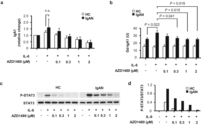 Effect of AZD1480 on phosphorylation of STAT3 and production of IgA1 and galactose-deficient (Gd-IgA1) by IgA1-secreting cells stimulated with interleukin-6 (IL-6). IgA1-secreting cell lines derived from peripheral blood mononuclear cells of 3 healthy control subjects (HCs) and 3 IgA nephropathy (IgAN) patients were used. (a) Production of IgA1 and (b) Gd-IgA1 by IgA1-secreting cells from HCs and IgAN patients after IL-6 stimulation with and without AZD1480 pretreatment (0.1–2 μM). Mean values + SD from 1 representative experiment with 3 samples each are shown. (c) Effect of AZD1480 on phosphorylation of Y705 STAT3 induced by IL-6 in HC or IgAN cells. One of 3 similar blots is shown. (d) Densitometric analysis of data from (c).