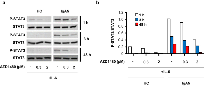 STAT3 activation by interleukin-6 (IL-6) was reduced by AZD1480 pretreatment. IgA1-secreting cell lines derived from peripheral blood mononuclear cells of 3 healthy control subjects (HCs) and 3 IgA nephropathy (IgAN) patients were used. (a) STAT3 Y705 phosphorylation was assessed 1, 3, and 48 hours after IL-6 stimulation with or without AZD1480 (0.3 or 2 μM). One of 3 similar blots is shown. (b) Densitometric analysis of data from (a).