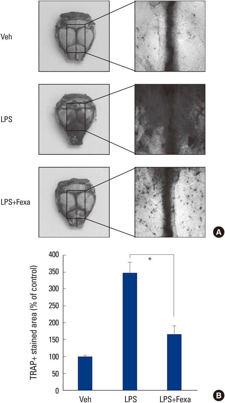 Fexaramine (Fexa) suppresses lipopolysaccharide (LPS)-induced osteoclast formation in vivo. (A) Calvaria of mice that received vehicle, LPS, or LPS plus fexa (5 mg/kg) were subjected to tartrate-resistant acid phosphatase (TRAP) staining. (B) TRAP+stained area in calvaria were quantified using the image J program. Representative images are shown. Data are expressed as the mean±standard deviation from at least three independent experiments. * P
