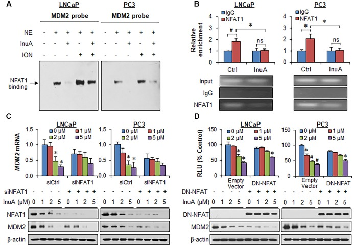 Inulanolide A inhibits NFAT1-mediated MDM2 transcription. (A) LNCaP and PC3 cells were exposed to InuA (5 μM) for 24 h in the presence or absence of ionomycin (ION). Nuclear proteins were extracted and incubated with an MDM2 probe, followed by an EMSA assay. NE, nuclear extract. (B) LNCaP and PC3 cells were exposed to InuA (5 μM) for 24 h. The crosslinked chromatin was immunoprecipitated with anti-NFAT1 or IgG antibodies, followed by a real-time PCR analysis. (C) LNCaP and PC3 cells were transfected with NFAT1 siRNA or the respective control siRNA for 36 h, followed by exposure to InuA at the indicated concentrations for 24 h. The relative MDM2 mRNA levels and the protein levels of NFAT1 and MDM2 were determined by quantitative real-time PCR and Western blotting, respectively. (D) LNCaP and PC3 cells were co-transfected with DN-NFAT and MDM2 P2 promoter luciferase for 24 h, followed by exposure to InuA at the indicated concentrations for 24 h. The relative luciferase levels were then determined using a dual-reporter gene detection system. The protein levels of DN-NFAT and MDM2 were determined by a Western blot analysis. Data are representative of at least three experiments ( ∗ P