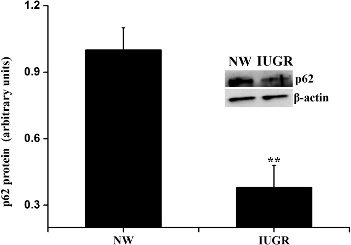 Protein expression of p62 in the small intestine of IUGR and NW fetuses. Data are expressed relative to β-actin and normalized to the NW group (n = 4). ** P